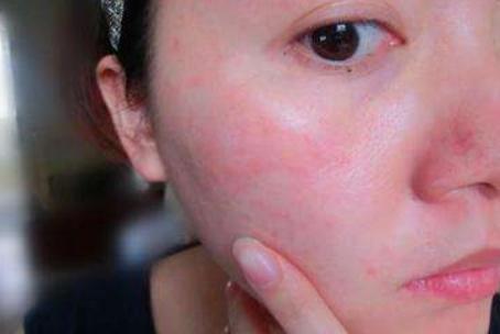 皮肤经常过敏怎么办?3种方式修复皮肤,慢慢远离敏感肌