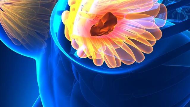 超40岁女性每年都应筛查乳癌!这8类人尤其要当心